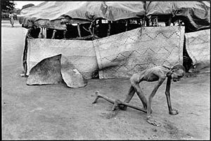 Starvation in Sudan; photo by James Nachtwey
